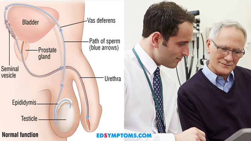 Erectile Dysfunction Doctors and Specialists